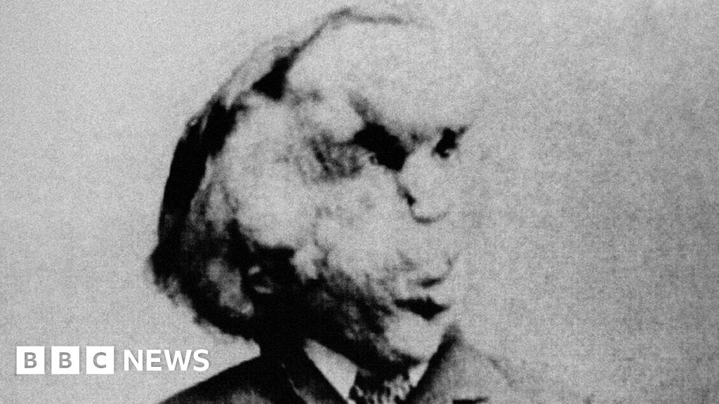 Elephant Man city statue plan faces 'freak show' criticism thumbnail