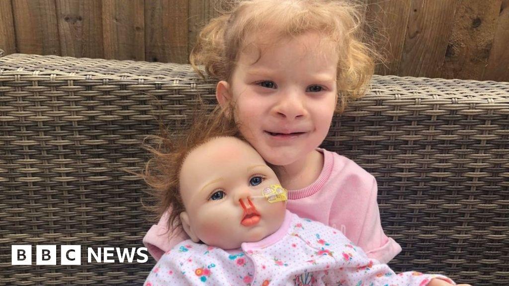 Dolls with cleft lips 'help children through play'