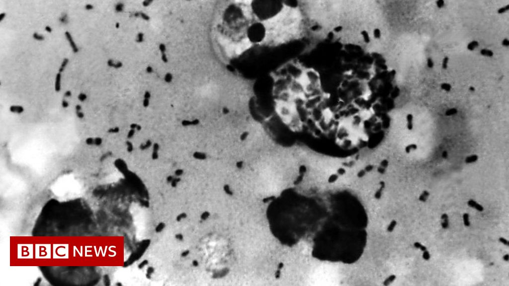 China bubonic plague: Inner Mongolia takes precautions after case - BBC News