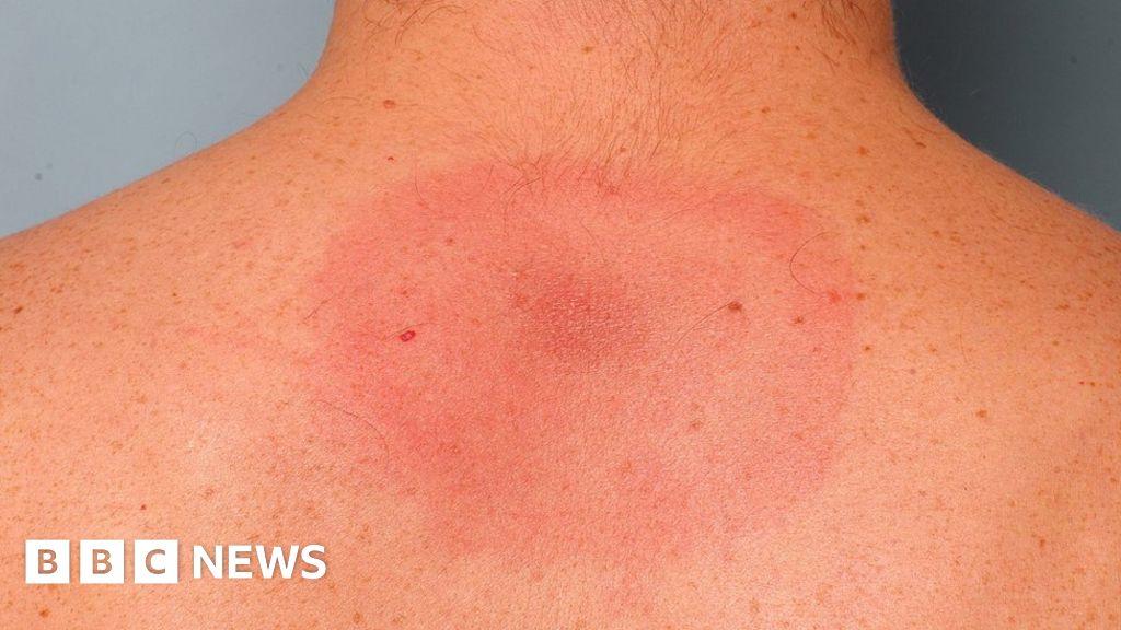 Long-term Lyme disease 'actually chronic fatigue syndrome' - BBC News thumbnail