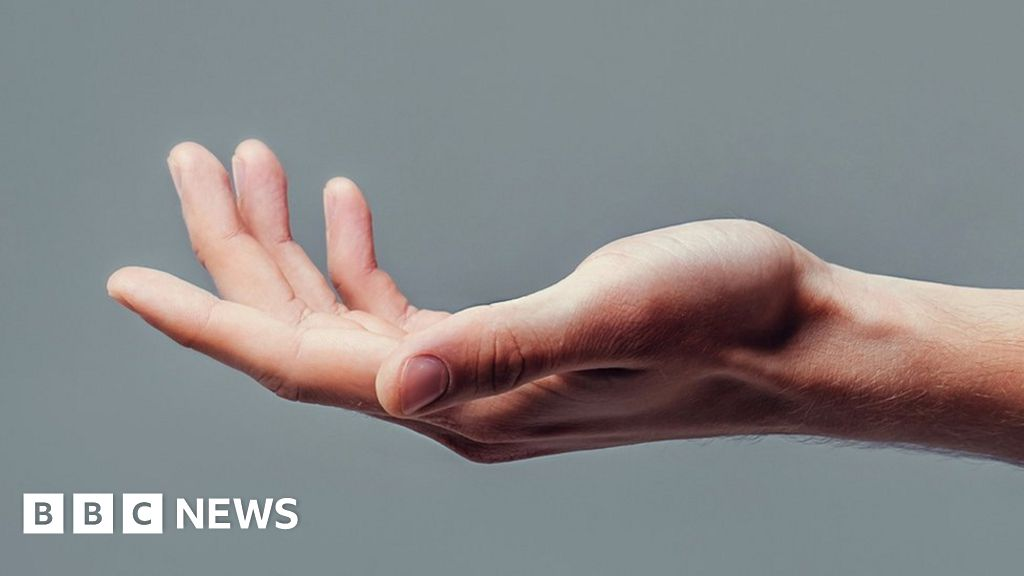 'Rewiring nerves' reverses hand and arm paralysis thumbnail
