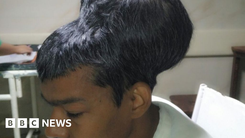 'Largest brain tumour' removed in India