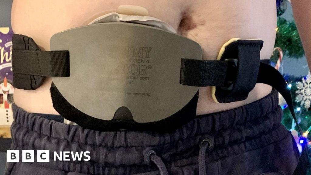 West Midlands Police officer given 'armour' for stoma bag