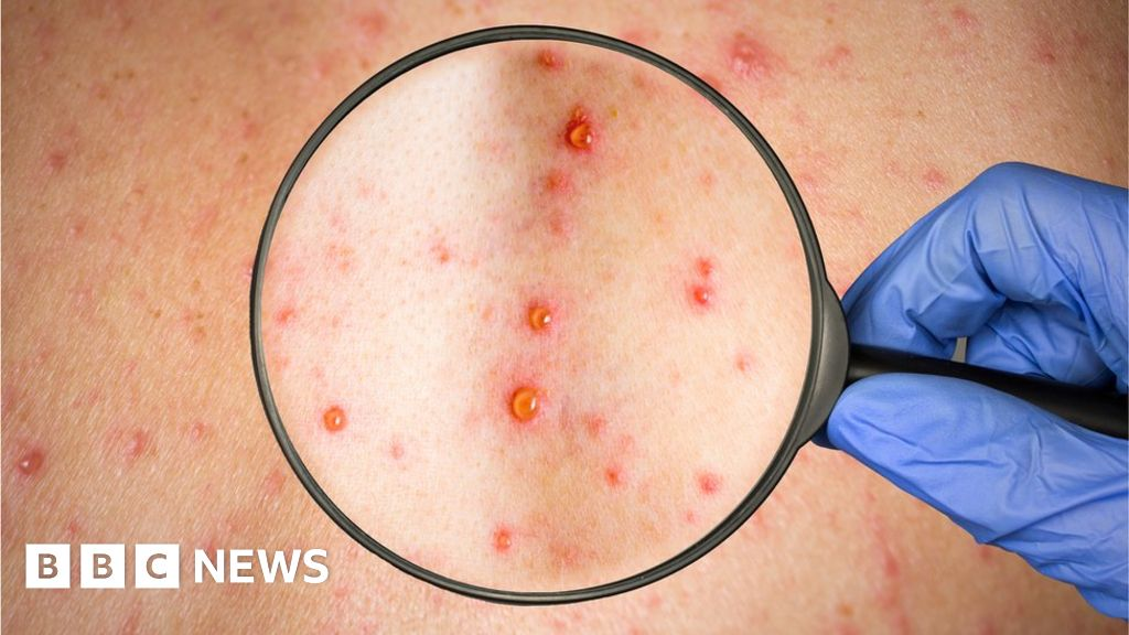 Measles cases triple in Europe