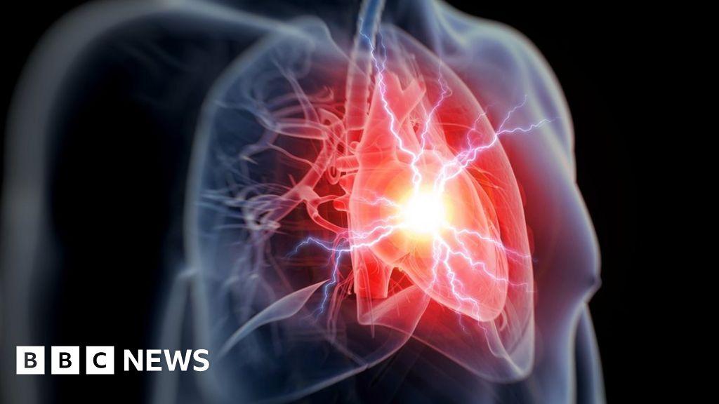 Anti-inflammatory drug 'cuts heart attack risk' - BBC News