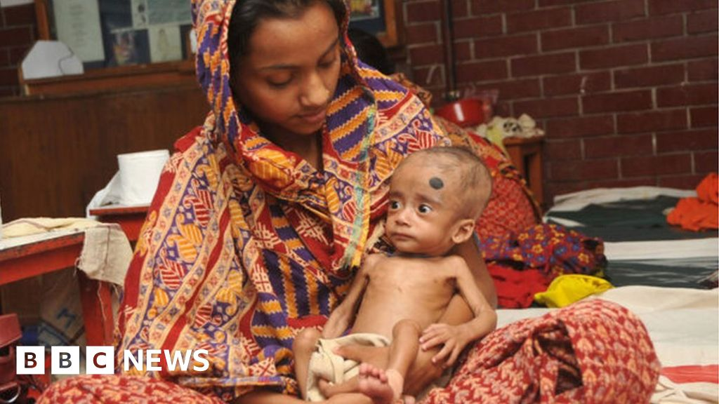 Good gut bacteria 'helps starving children' thumbnail