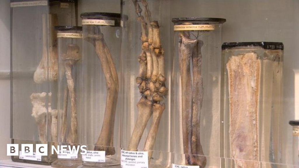edinburgh u0026 39 s surgeons u0026 39  hall museums reopens after  u00a34m
