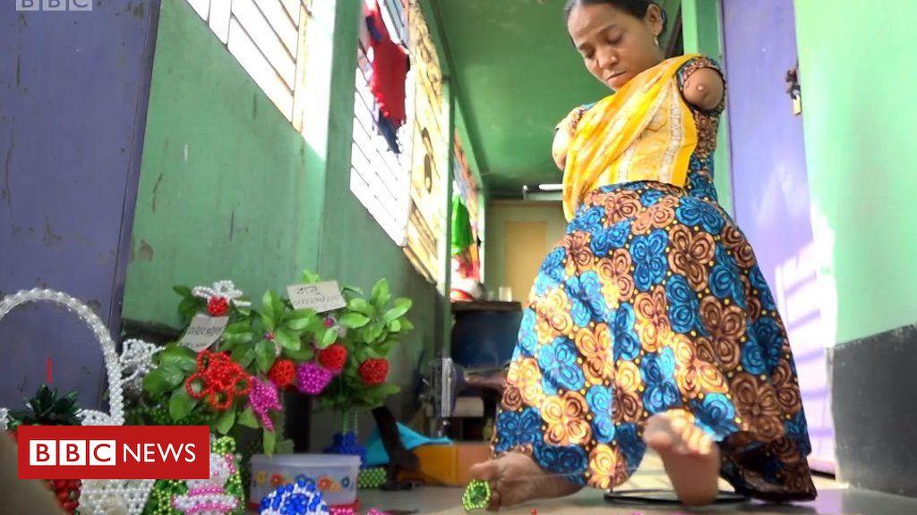 Resultado de imagem para Ela nasceu sem braços: 'Vizinhos sugeriram aos meus pais que me matassem'