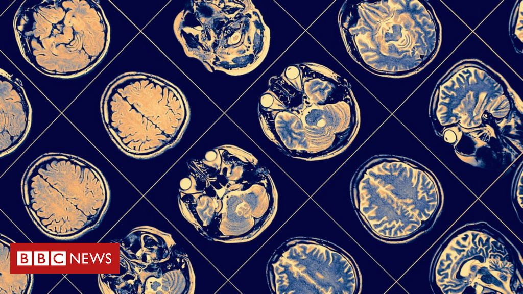 Sintoma de Parkinson que 'congela' movimento pode ser contido com tratamento desenvolvido no Brasil