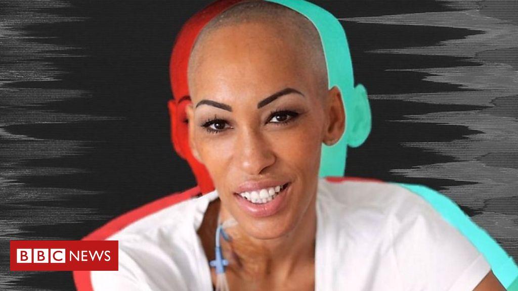 Resultado de imagem para O drama da mulher em uma busca mundial por doador de células-tronco
