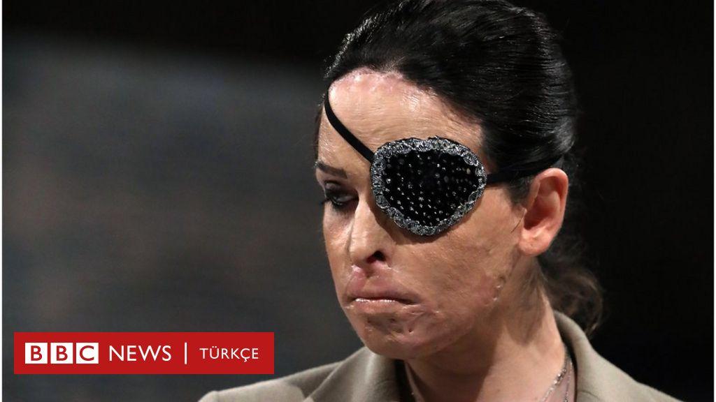 İtalya'da eski Miss İtalya finalisti sevgilisine asitle saldıran erkeğe 15 yıl hapis