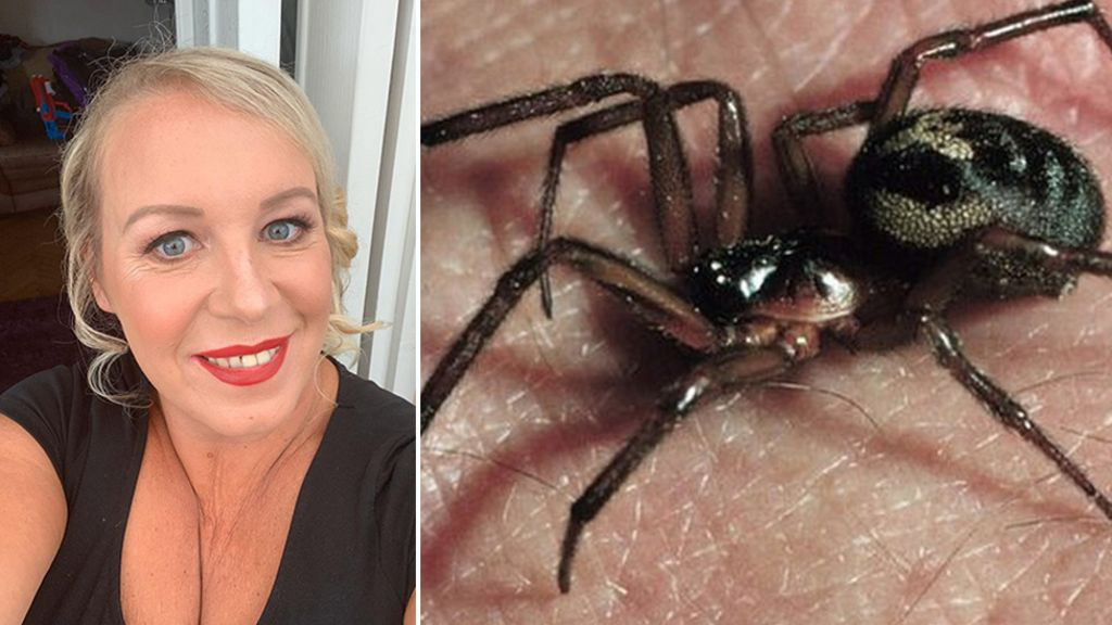 False Widow Spider Bite Leaves Barry Woman In Hospital Bbc News
