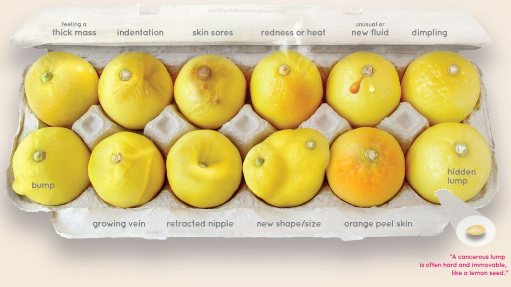 Signs Of Breast Cancer Explained Using Lemons Bbc News