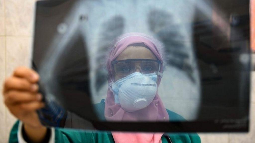 Coronavirus Egypt Doctors Accuse Government Over Medics Deaths Bbc News