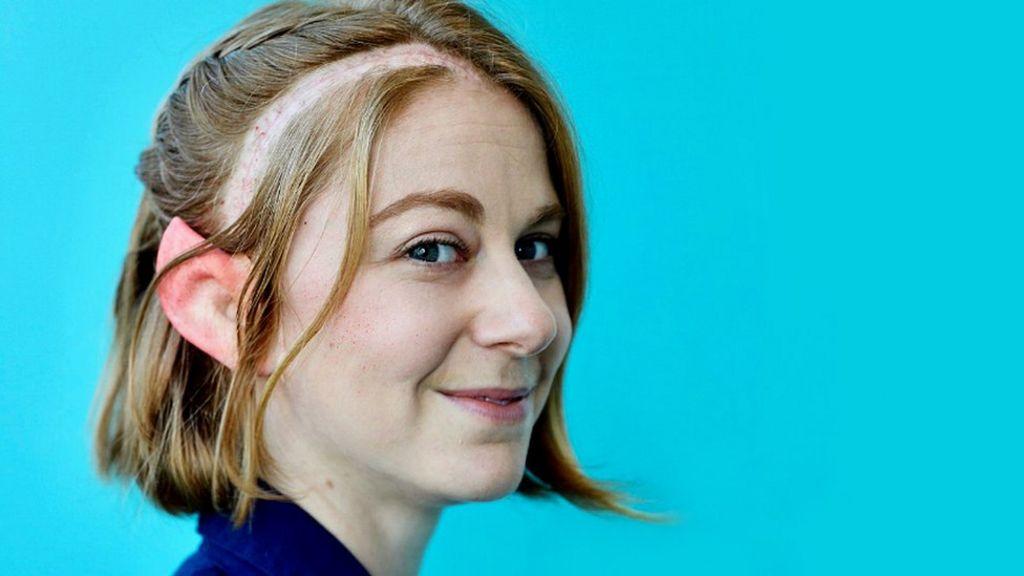 Simone Giertz: 'Why I sent my brain tumour to Antarctica