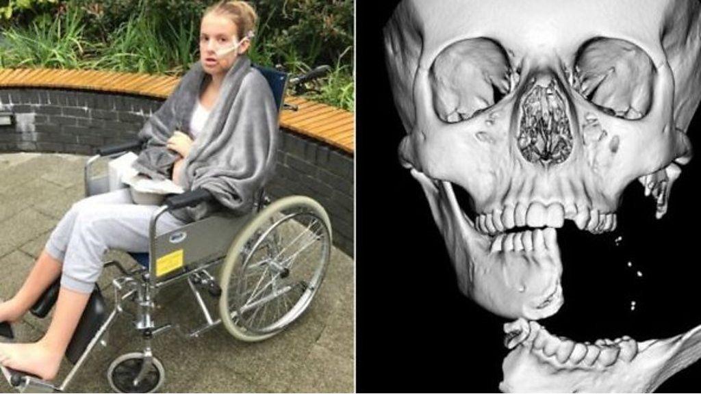 'Cheguei ao hospital segurando minha mandíbula': cirurgia reconstrói rosto de adolescente