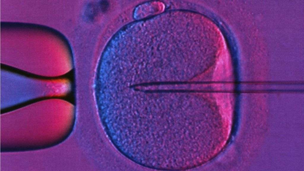 IVF: Patients face postcode lottery for treatment