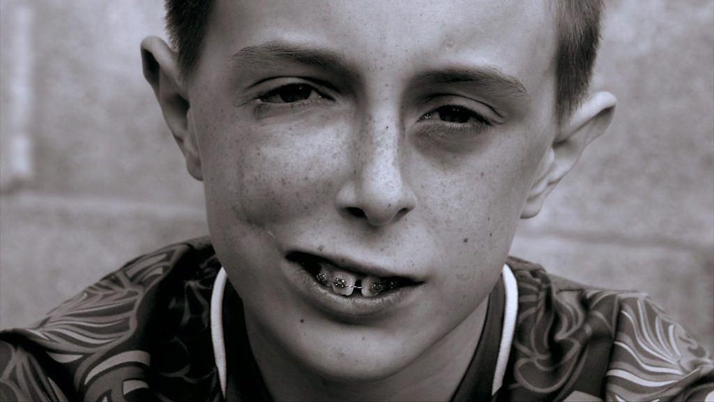 Facial Disfigurement In 102