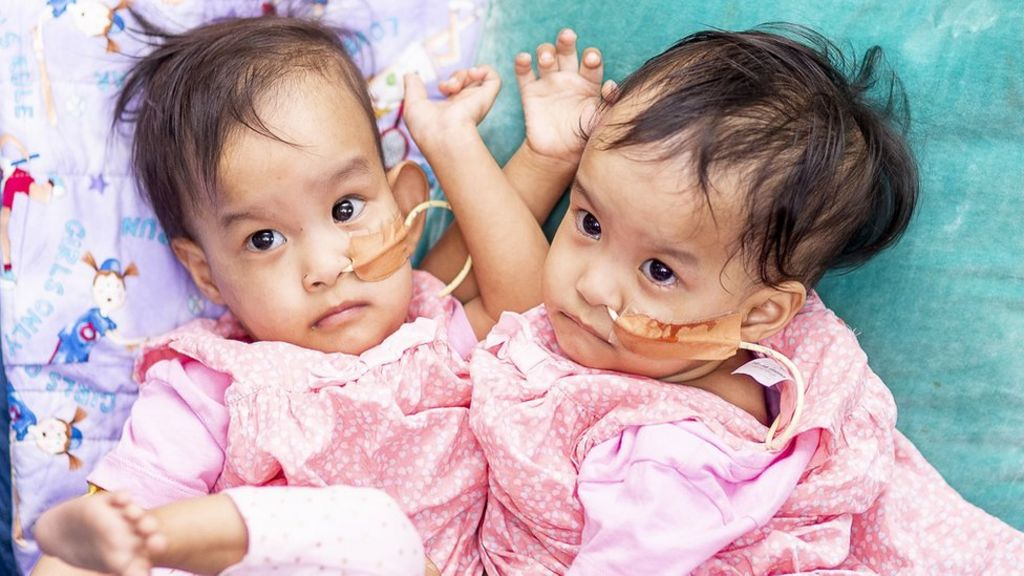 Conjoined twins: Bhutanese girls separated in six-hour surgery - BBC