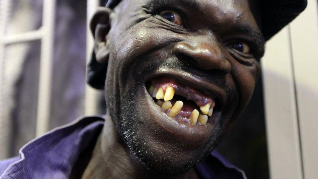 Zimbabwe S Mr Ugly Contest Winner Too Handsome Bbc News
