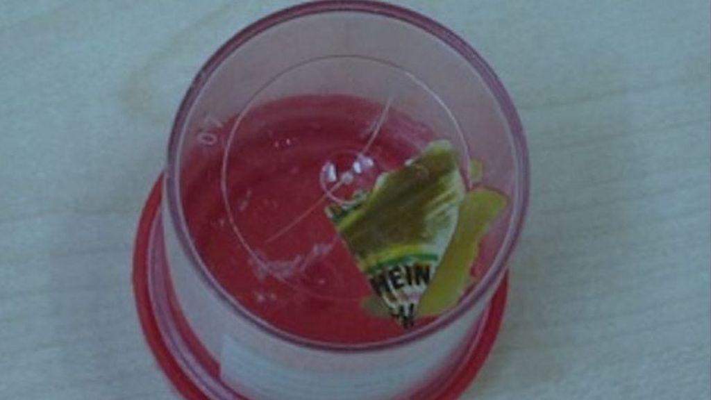 'Crohn's disease' patient had Heinz sachet in gut