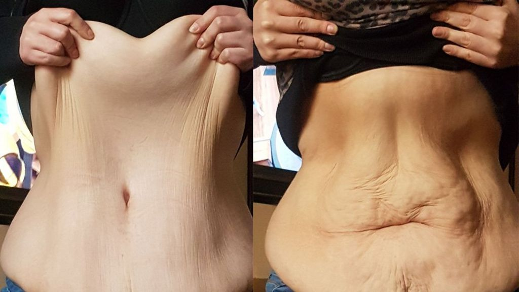 Weight loss and loose skin: Patients 'forgotten' by NHS - BBC News