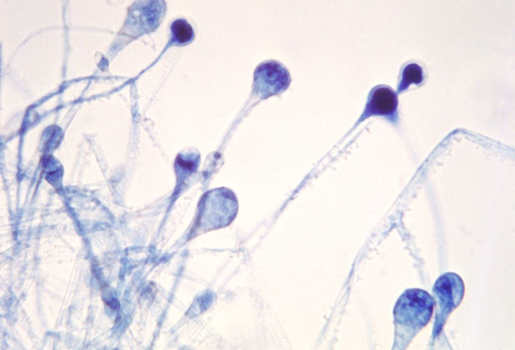 Black fungus graphic representation