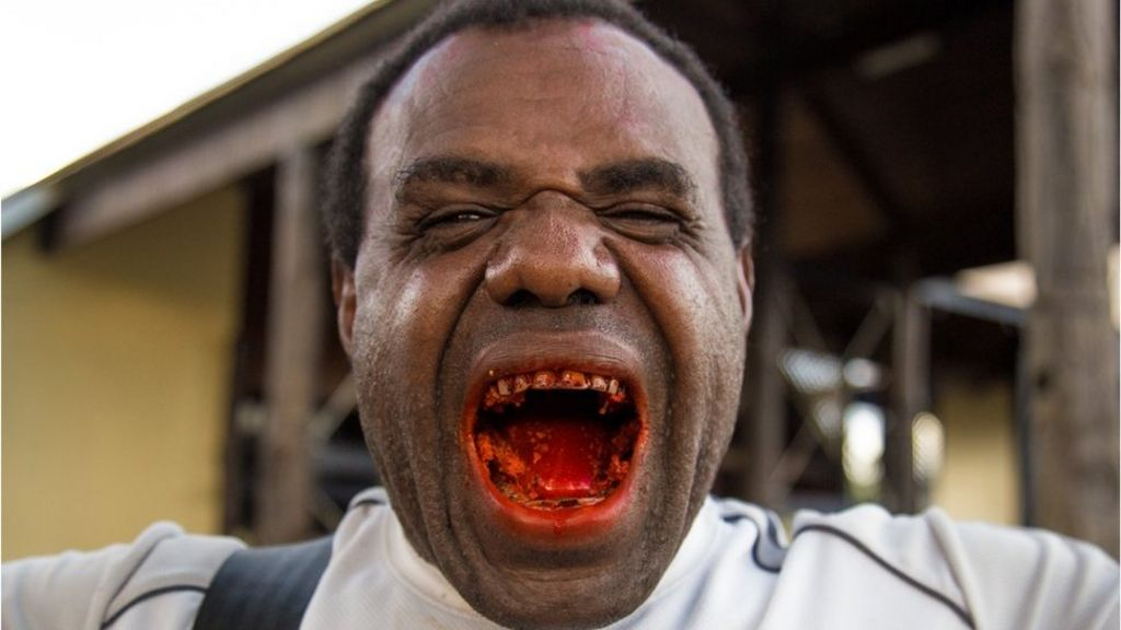 Is the traditional chewing of Betel nut killing Papua New