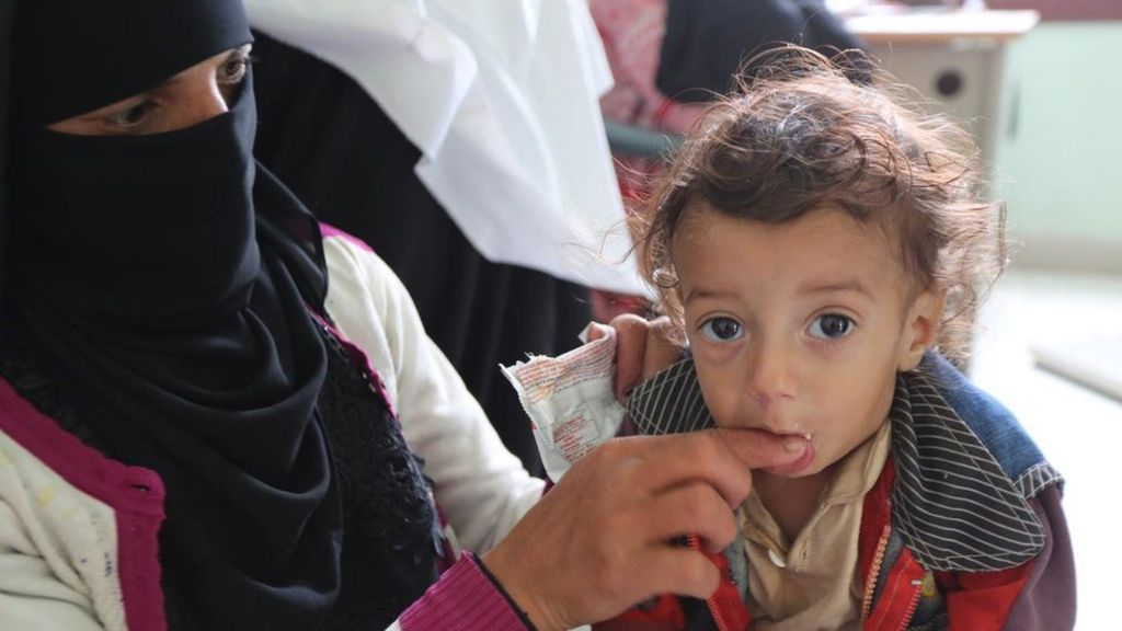 bbc.co.uk - Yemen conflict: A million more children face famine, NGO warns