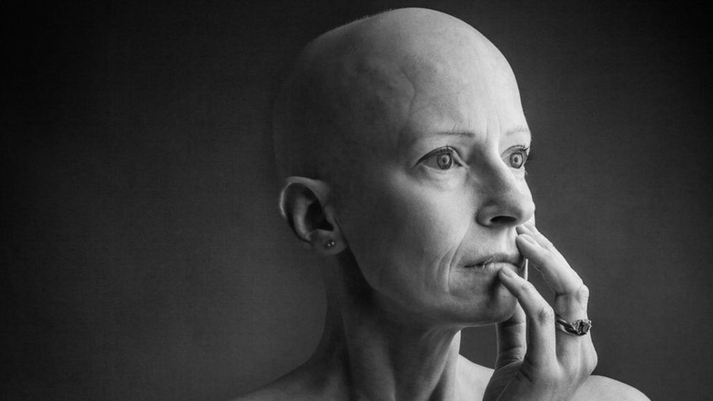 bbc.co.uk - Mariam Issimdar - The breast cancer surgeon who got breast cancer
