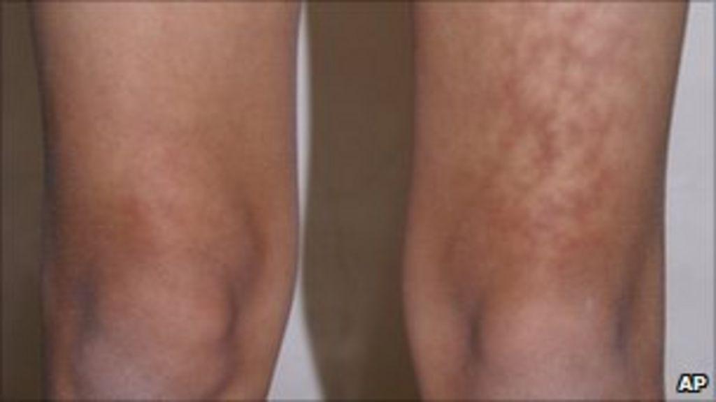 Laptop thigh' skin rash warning - BBC News