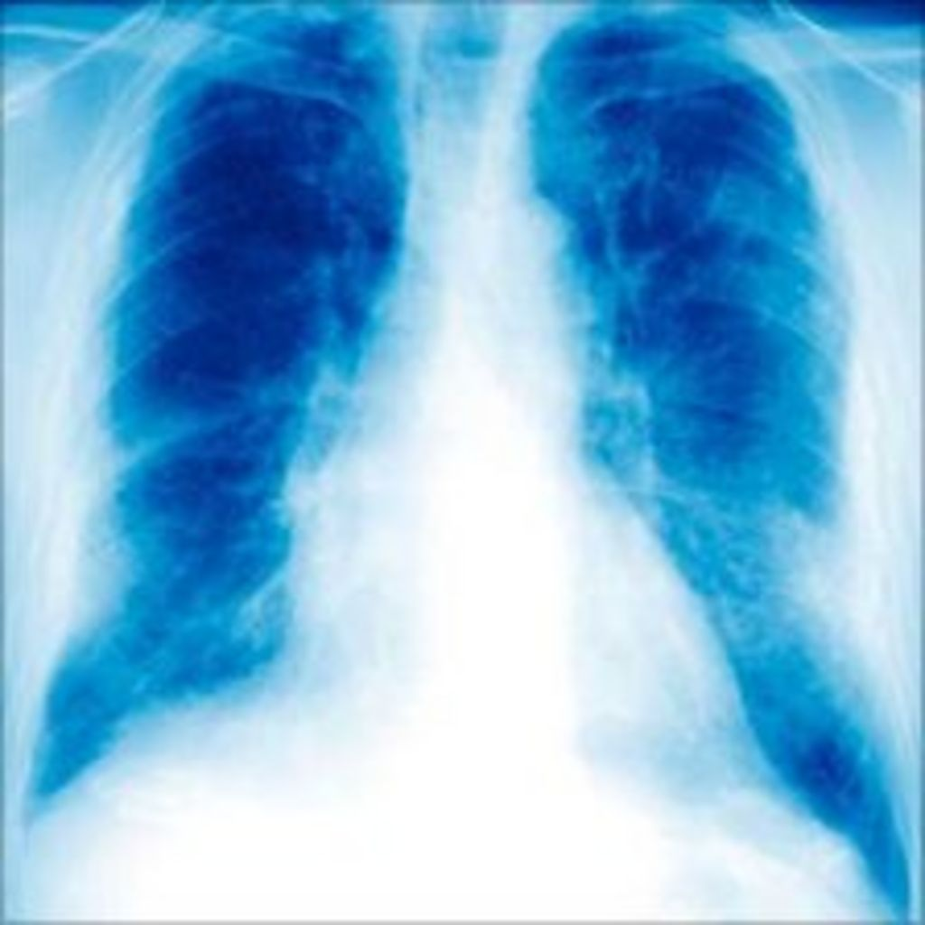 Mesothelioma asbestos victims to get £350m compensation  BBC News