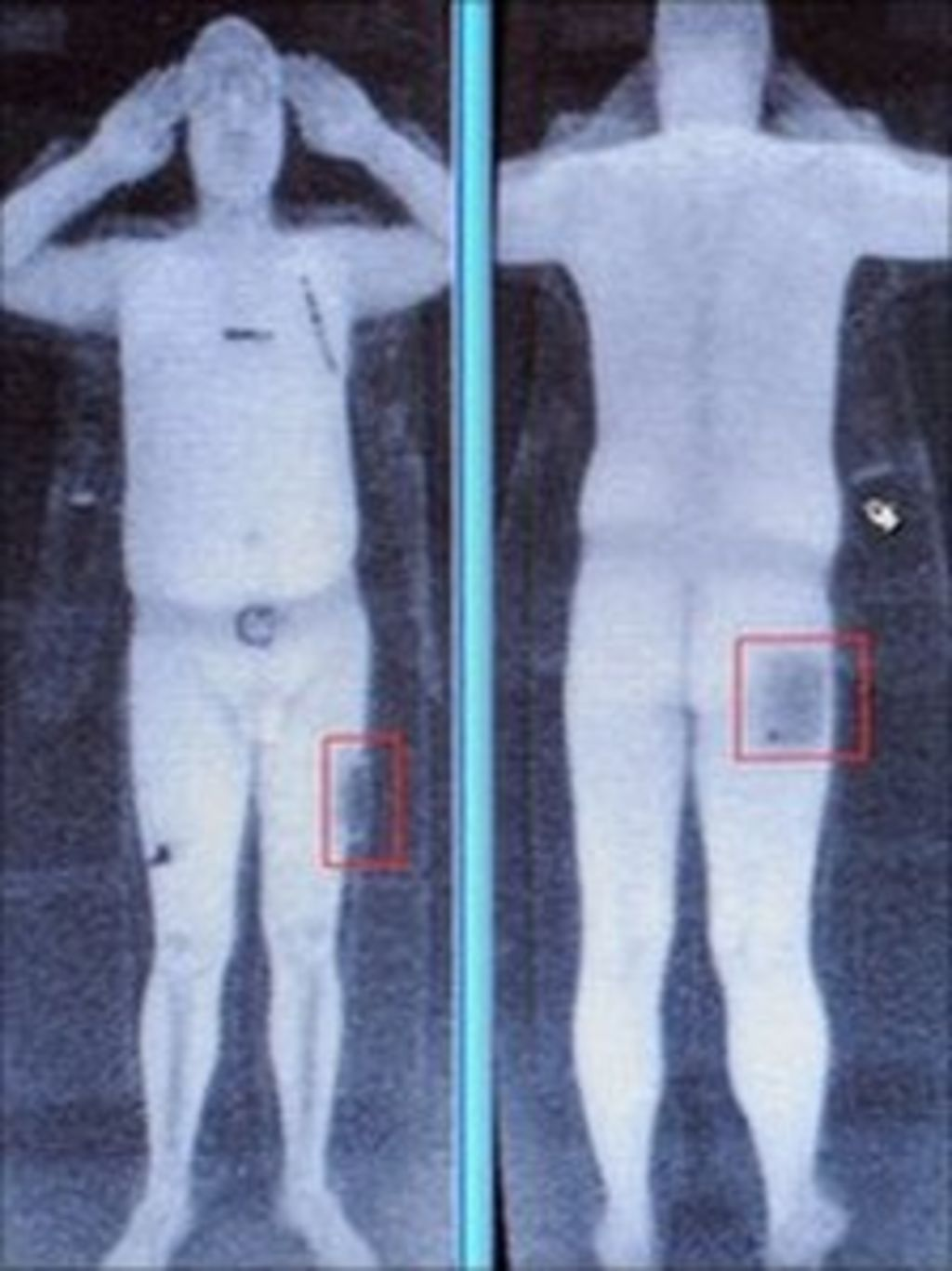 airport scanners full body screening machines Last year, propublica reported that airport backscatter machines -- the controversial imaging devices that x-ray the human bodies that pass through airport security checkpoints -- might be more.