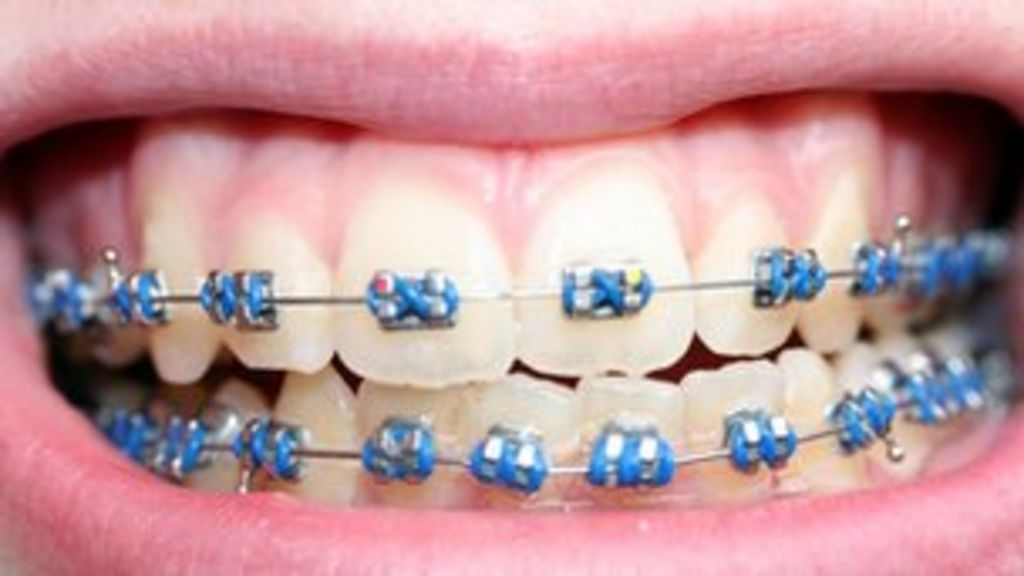 Five Options to Get Affordable Braces for Adults - colgate.com