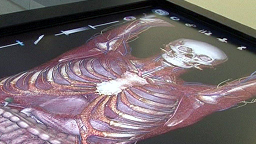 Virtual Surgery How To Dissect A Digital Cadaver Bbc News