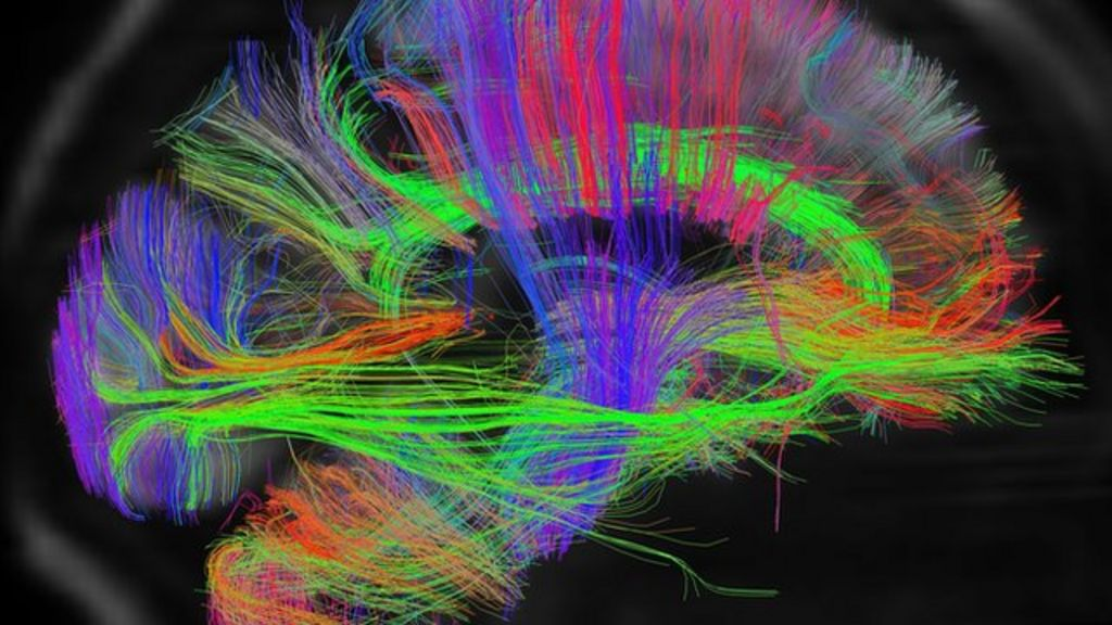Mind mapping Inside the brains wiring BBC News