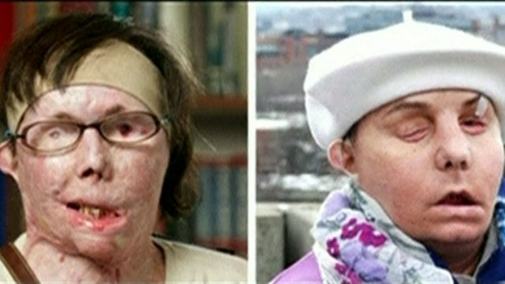 Cousins Suffer Life Changing Injuries After Acid Acid