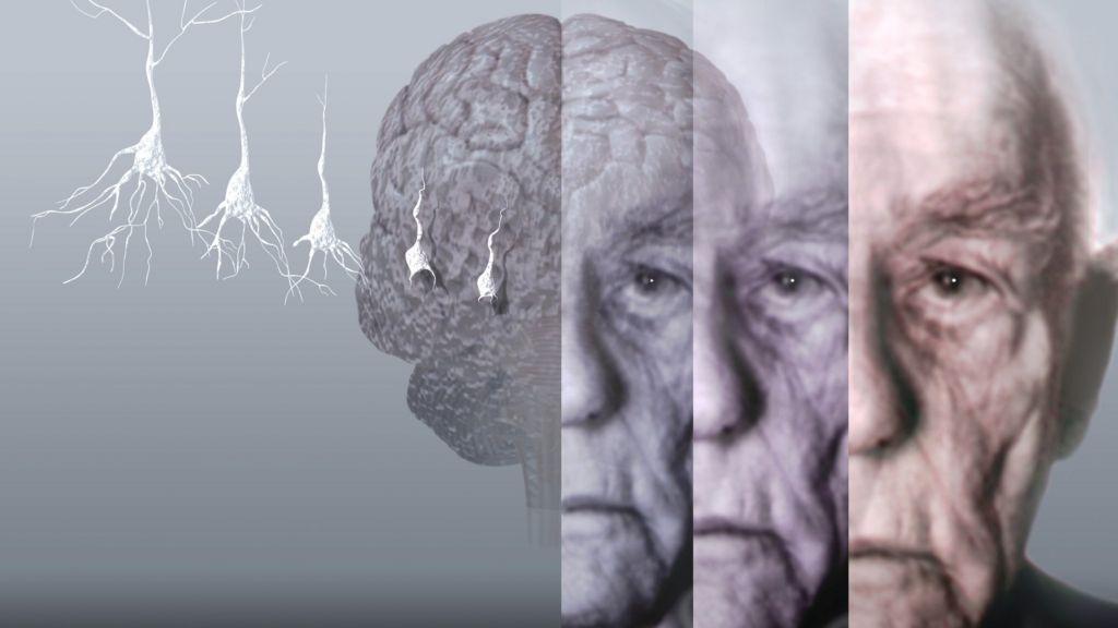 Alzheimer's brain scan detects tau protein - BBC News