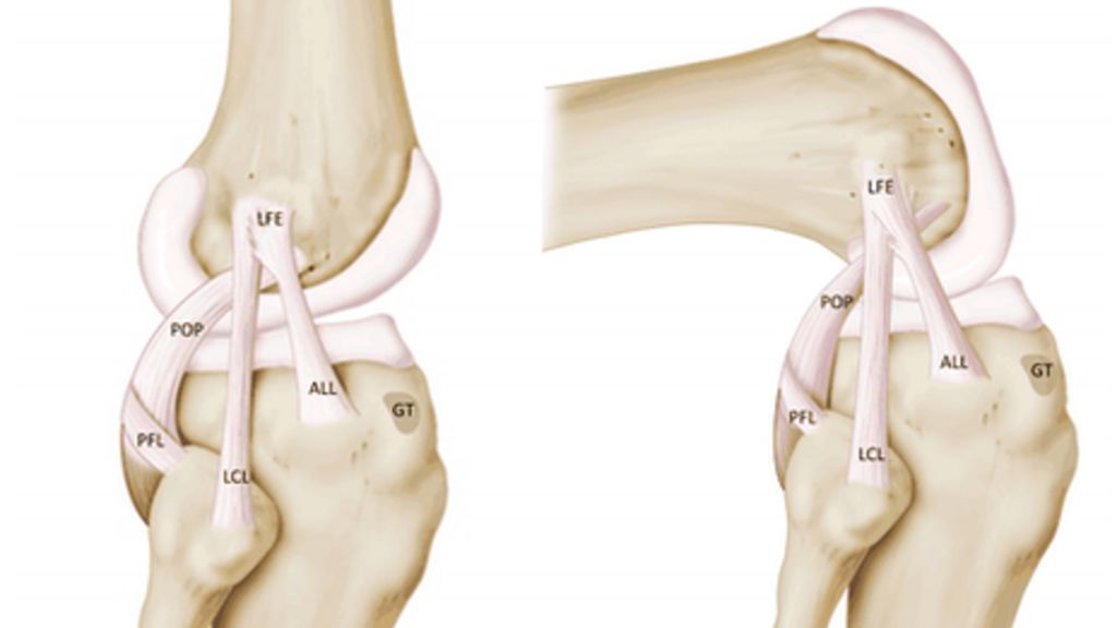 New ligament discovered in knee, Belgian surgeons say - BBC News
