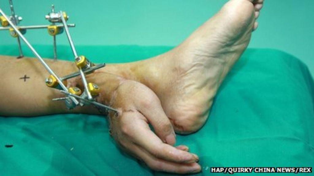 Severed Hand Kept Alive On Mans Ankle Bbc News