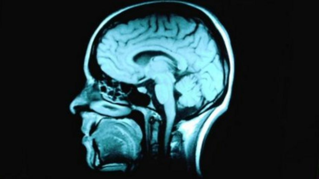 Alcohol-related brain damage report highlights concerns