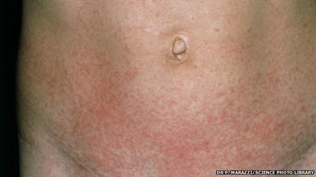 Scarlet fever cases rise to weekly high in England - BBC News Scarlet Fever