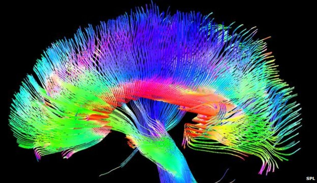Artists Have Structurally Different Brains Bbc News