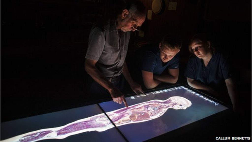 Anatomy Students Work On Life Size Virtual Cadaver At University Of