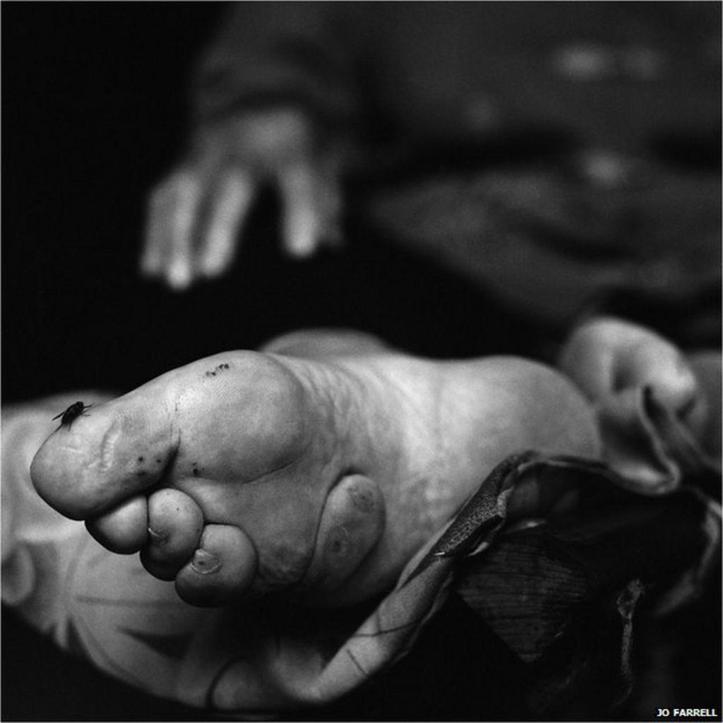 Chinese Foot Binding Bbc News