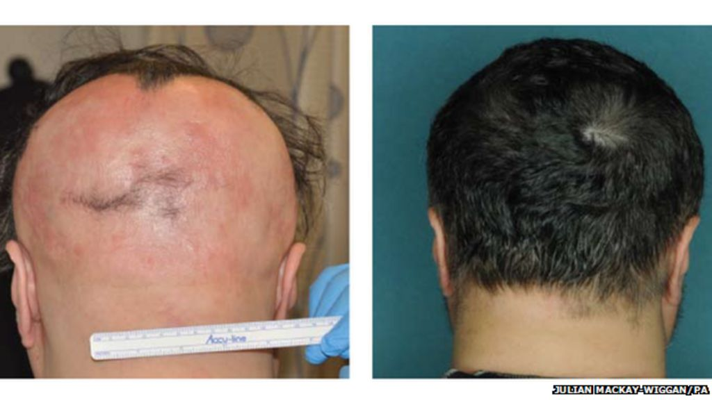Hair Loss Reversed In Alopecia Areata Sufferers Bbc News