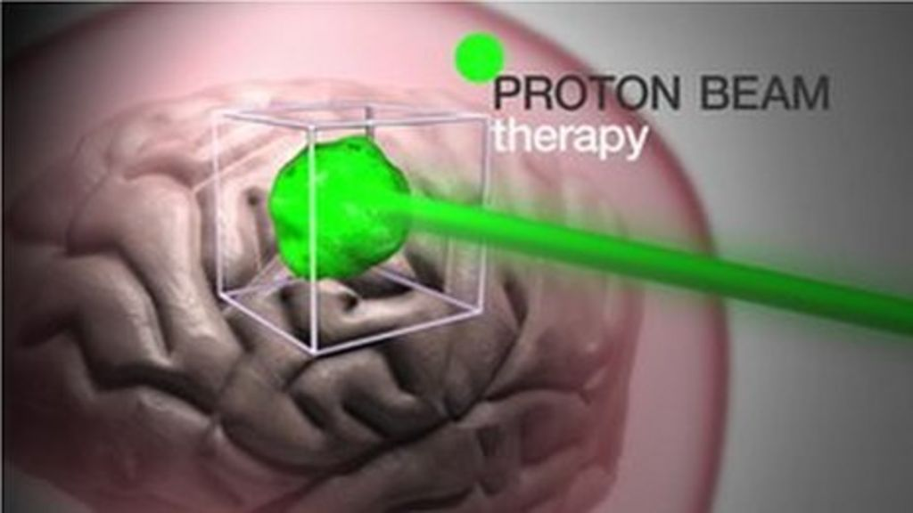 Proton Beam Therapy How It Works Bbc News