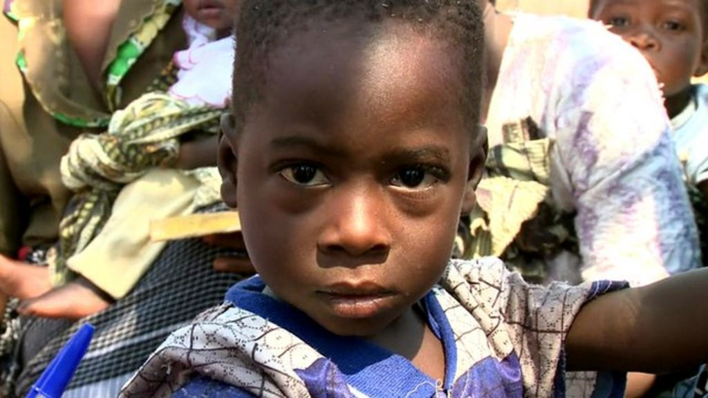 Amidou is malnourished, like many Malawian children, and must go to  hospital, says the BBC's Fergus Walsh