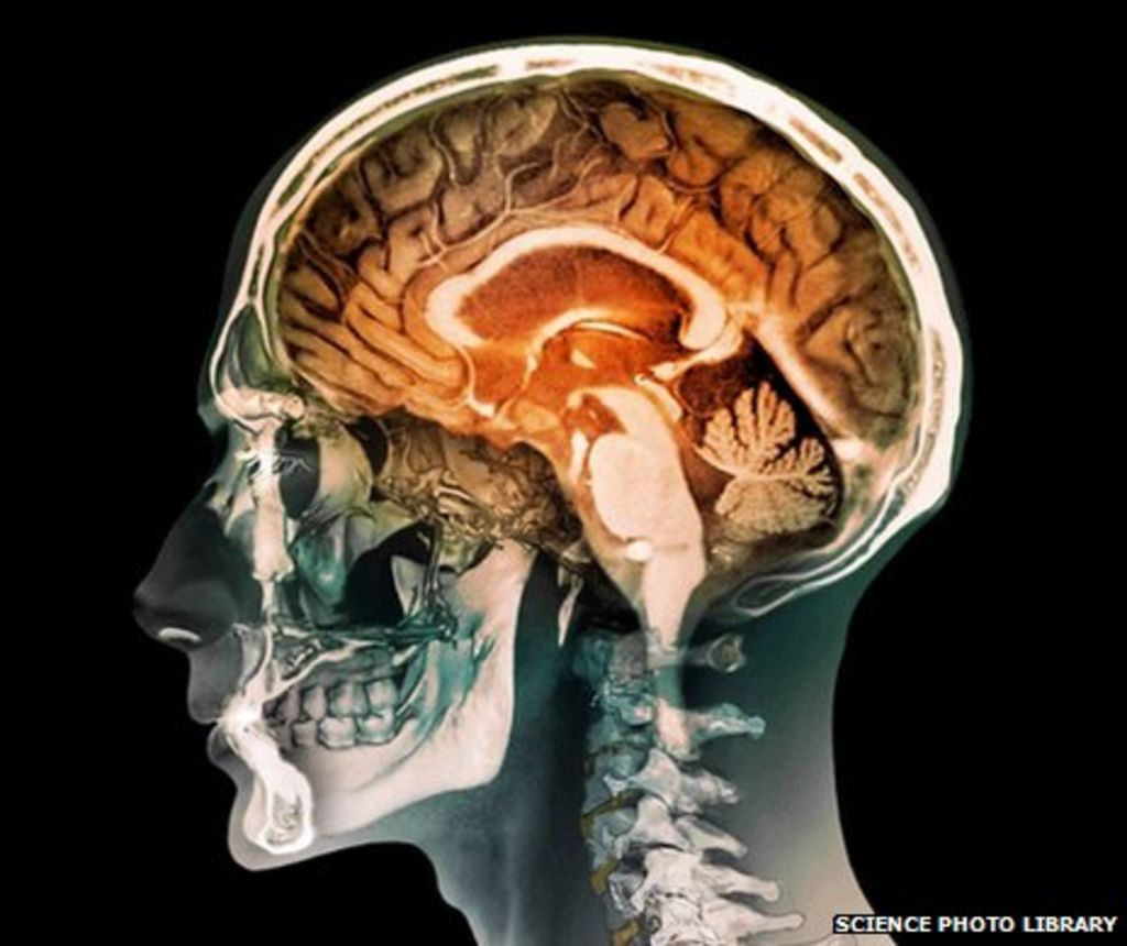 Is Your Brain Male Or Female Bbc News