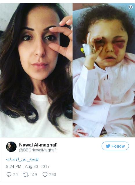 Twitter post by @BBCNawalMaghafi: #بثينه_عين_الانسانيه pic.twitter.com/89EV78J6WJ